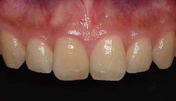 過去に実際に行ったインプラント治療の口腔内写真を見せてくれるか